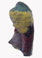 ヒトの左肺 気管支肺区域 正面から