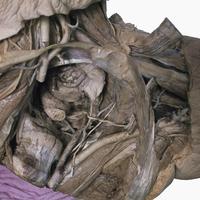 ヒト男性の骨盤右斜め前 精索、陰茎根