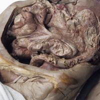 ヒトの腸間膜の解剖 下行結腸 S状結腸