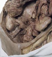 ヒトの盲腸の解剖 上行結腸