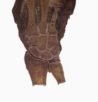 ヒトの右手首の解剖 冠状断面 背面から