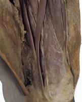 ヒトの左下腿の解剖 前面内側から 縫工筋、大腿直筋、大内転筋