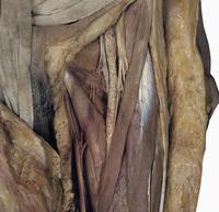 ヒトの左大腿三角の解剖 大腿動脈、神経、血管、大伏在静脈