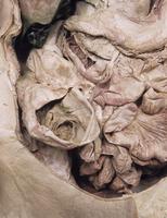 ヒト女性盲腸の解剖 正面から
