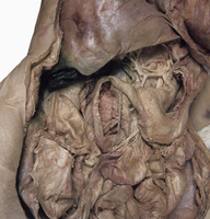 ヒトの十二指腸乳頭の解剖 正面から