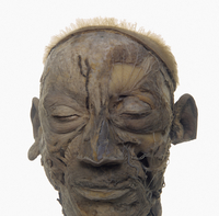 ヒトの顔の表面的な解剖 正面から