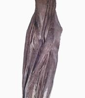 ヒトの右肘窩の解剖 正面から 橈骨神経と動脈が見える