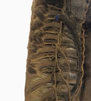 脊柱に隣接する肋間間隙、血管、神経 解剖 32268000555| 写真素材・ストックフォト・画像・イラスト素材|アマナイメージズ