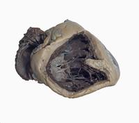 ヒトの横隔膜の解剖 上部から 食道裂孔と大動脈 32268000560| 写真素材・ストックフォト・画像・イラスト素材|アマナイメージズ