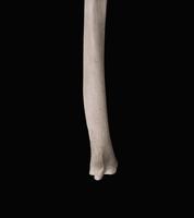ヒトの上肢骨 右尺骨遠位端 背面から