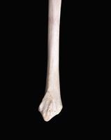 ヒトの上肢骨 右橈骨 側面から