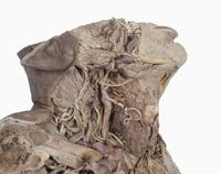 ヒトの首の解剖 右側