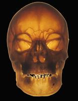 ヒトの人の頭蓋骨 前面
