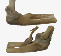 ヒトの肘関節と近位橈尺関節