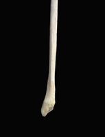 ヒトの下肢骨 左腓骨遠位端 下部より