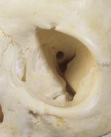 ヒトの左眼窩 篩骨の眼窩板と視神経管 32268000619| 写真素材・ストックフォト・画像・イラスト素材|アマナイメージズ