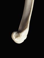 ヒトの上肢骨 遠位上肢骨 側面から 32268000622| 写真素材・ストックフォト・画像・イラスト素材|アマナイメージズ