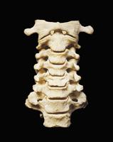 ヒトの頸椎 前面から 第二頸椎と第一頸椎 32268000628| 写真素材・ストックフォト・画像・イラスト素材|アマナイメージズ
