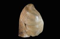 ヒトの肺表面 右側面