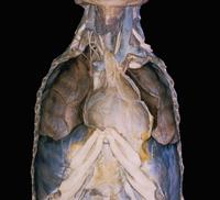 ヒトの胸腔の解剖 胸腺と心膜が見える