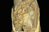 ヒトの消化管とその他の腹部器官の解剖