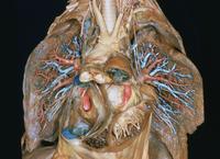 ヒトの肺の解剖