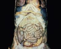 ヒトの腹膜腔の解剖 32268000649| 写真素材・ストックフォト・画像・イラスト素材|アマナイメージズ