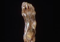 ヒトの左足の解剖 下から 32268000650| 写真素材・ストックフォト・画像・イラスト素材|アマナイメージズ