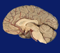 ヒトの脳の中央部