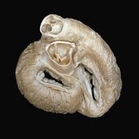 ヒトの心臓 上から 弁と血管