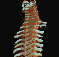 ヒトの脊椎動脈の解剖