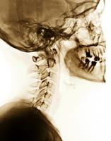 ヒトのた頸椎のX線写真 側面から 歯根管処置の跡がある