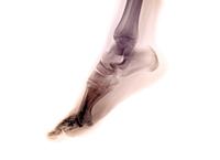11歳の女の子の色付けした足のX線写真