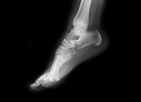 11歳の女の子の足のX線写真