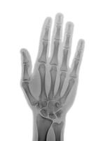 21歳の女性の手のX線写真