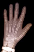 77歳の女性の骨粗しょう症の手のX線写真 32268000667| 写真素材・ストックフォト・画像・イラスト素材|アマナイメージズ