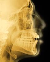 18歳男性の頭蓋骨側面のX線