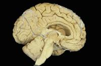 ヒトの脳の正中矢状断面図