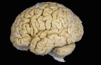 ヒトの脳の表面 側面図