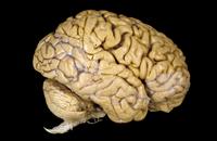 ヒトの脳の側面図