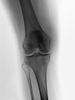 49歳女性の膝のX線 32268000690| 写真素材・ストックフォト・画像・イラスト素材|アマナイメージズ