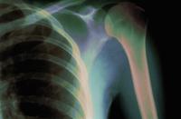 ヒトの肋骨と肩関節の上腕骨のX線 32268000694| 写真素材・ストックフォト・画像・イラスト素材|アマナイメージズ