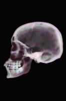 ヒトの頭蓋骨のX線 側面 32268000697| 写真素材・ストックフォト・画像・イラスト素材|アマナイメージズ