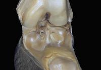 ヒトの膝の解剖 被膜、靭帯 32268000701| 写真素材・ストックフォト・画像・イラスト素材|アマナイメージズ