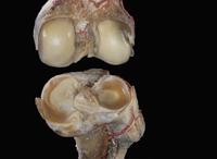 ヒトの膝の解剖 被膜、靭帯、動脈 32268000702| 写真素材・ストックフォト・画像・イラスト素材|アマナイメージズ
