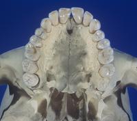 ヒトの上顎、歯、硬口蓋