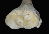 ヒトの右脛骨と腓骨 32268000707| 写真素材・ストックフォト・画像・イラスト素材|アマナイメージズ
