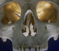 ヒトの右鼻窩、眼窩、歯 32268000709| 写真素材・ストックフォト・画像・イラスト素材|アマナイメージズ