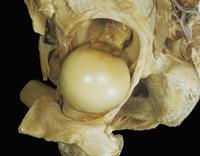 ヒトの左股関節の解剖