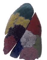 ヒトの左肺の気管支肺区域のレジンキャスト複製 肋骨面 32268000738| 写真素材・ストックフォト・画像・イラスト素材|アマナイメージズ